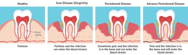 Gum Disease, Periodontal Disease, Gingivitis