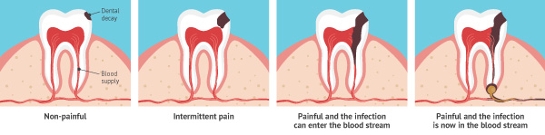 What is tooth decay? Process of tooth decay.